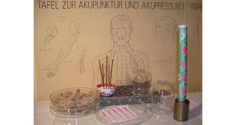 N-Akupunktur