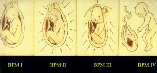 Die perinatalen Matrizen (BPM) (von links nach rechts): ozeanisches Wohlgefühl in BPM 1, Ende des paradiesischen Gefühls durch Eintreten der Wehen in BPM 2, ein Mix von Kampf, Lust, Ekstase und Aggression in BPM 3 und Austritt aus dem Geburtskanal und Befreiung in BPM 4.