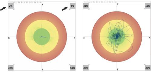 """Sitzen mit und ohne """"Bremse"""": Die sitzende Versuchsperson (Vorderseite = obere Seite der Grafik) macht während der 30-sekündigen Messung keine aktive Bewegung. Wenn man beim Mess-Stuhl das Bioswing-Sitzwerk blockiert (linkes Bild) und damit einen üblichen ergonomischen Stuhl aus ihm macht, zeigt sich ohne Bioswing einerseits eine ständige starke Abbremsung der Bewegung (Bewegung nur noch im mittleren grünen Kreis) und andererseits eine extreme Verlagerung der Restbewegungen – und damit der Belastungen – in die beiden hinteren Quadranten (Rücken der Versuchsperson, Unterseite der Grafik) – das ist höchst ungünstig für die Bandscheiben."""