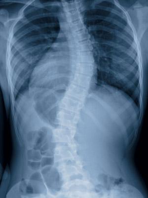 Seitlich verbogene Wirbelsäule: Röntgenbild einer Skoliose; Abb: © draw05 - Fotolia.com