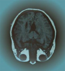 künstliches Gehirn