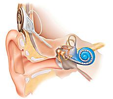 Gehör Implantat